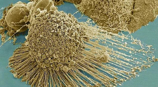 Kanserli hücreleri tamamen yok eden bir tedavi yöntemi bulundu