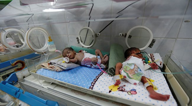 'Yemen'de günde 130 çocuk ölüyor'