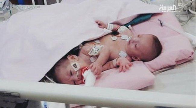 Gazzeli yapışık ikizler Suudi Arabistan'da ameliyatla ayrıldı