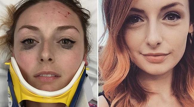 Yaralının Selfie Pozu: Sosyal Medya Yıkıldı