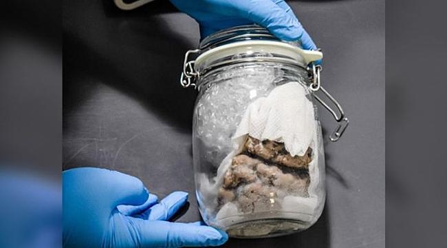 ABD Polisi Kavanozda İnsan Beyni Buldu