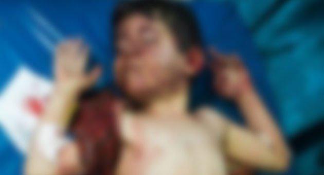 İdlib'e Hava Saldırısı 10 Ölü, Çok Sayıda Yaralı Var