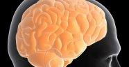 Çağın hastalığı: 'Dağınık beyin sendromu'